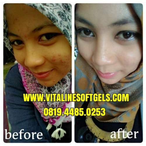 Bukti Manfaat Vitaline Softgels Tiens Untuk Kecantikan