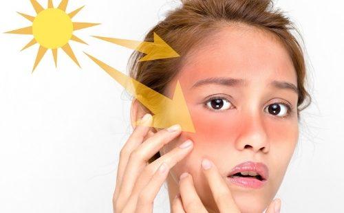Inidia 10 Cara Mencerahkan Wajah Akibat Paparan Sinar Matahari