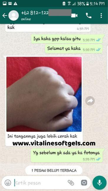 testimoni pemutih vitaline tiens